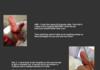 {MORBID} Crushed finger